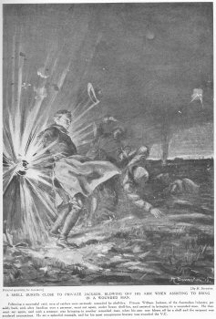 A Shell burst close To Private Jackson, Blowing Off His Arm When Assisting To Bring  In A Wounded Man.